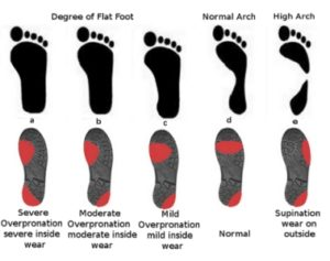 lgr-prep-article-3-footwear-pattern